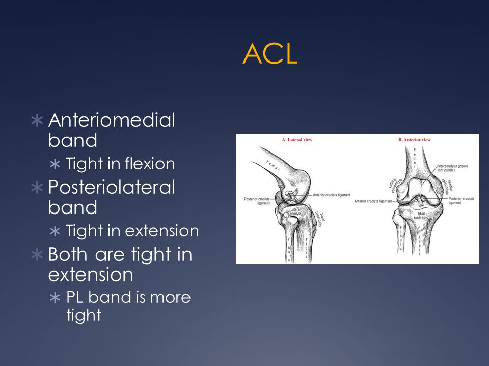 ACL  Anteriomedial band  Tight in flexion  Posteriolateral band  Tight in extension  Both are tight in extension  PL band is more tight