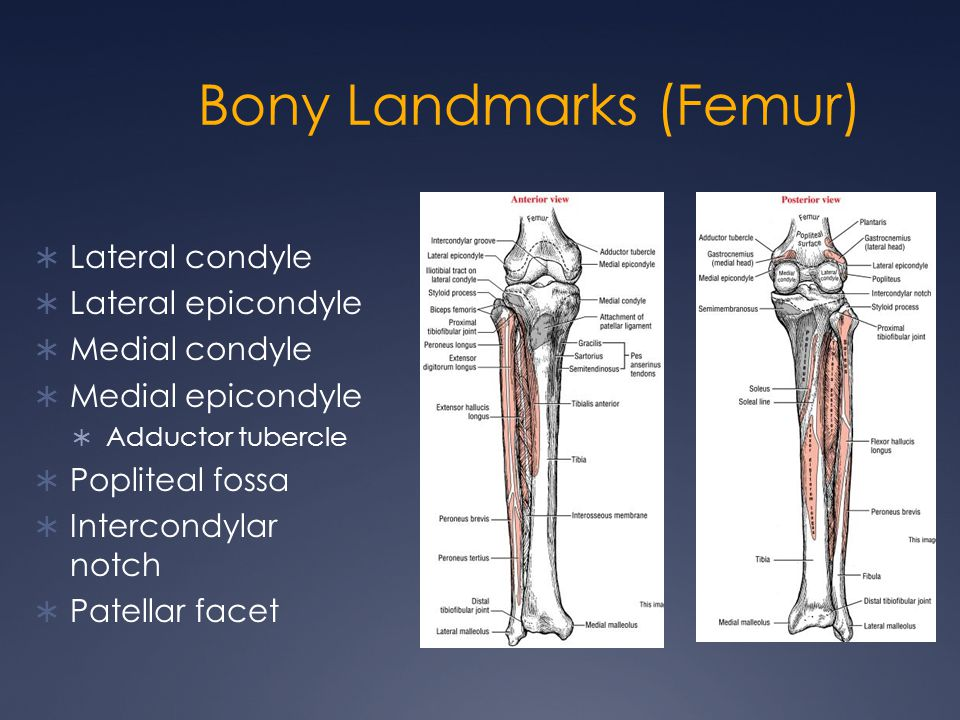 Bony Landmarks (Femur)  Lateral condyle  Lateral epicondyle  Medial condyle  Medial epicondyle  Adductor tubercle  Popliteal fossa  Intercondyl