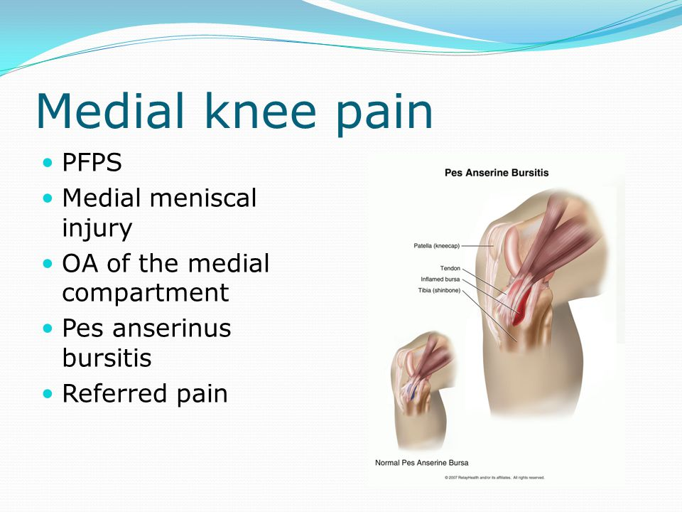 Medial knee pain PFPS Medial meniscal injury OA of the medial compartment Pes anserinus bursitis Referred pain
