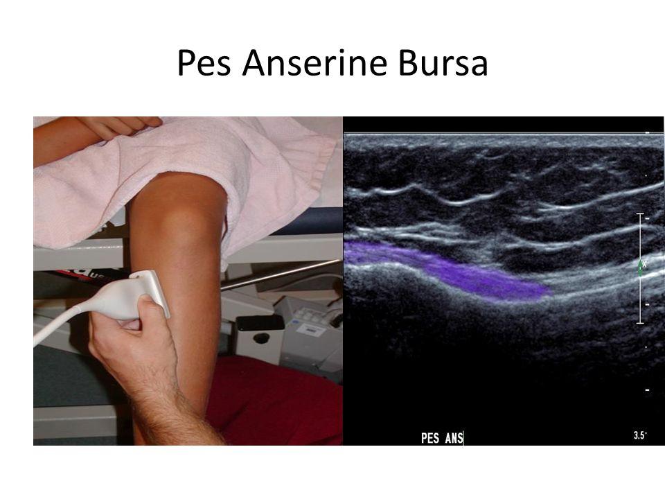 Pes Anserine Bursa