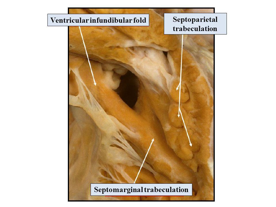 Ventricular infundibular fold Septomarginal trabeculation Septoparietal trabeculation