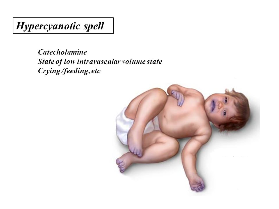 Hypercyanotic spell Catecholamine State of low intravascular volume state Crying /feeding, etc