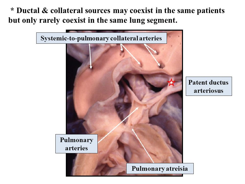 Systemic-to-pulmonary collateral arteries Pulmonary arteries Pulmonary atreisia Patent ductus arteriosus * Ductal & collateral sources may coexist in the same patients but only rarely coexist in the same lung segment.