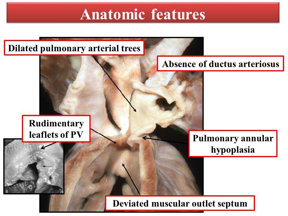 Absence of ductus arteriosus Pulmonary annular hypoplasia Anatomic features Dilated pulmonary arterial trees Deviated muscular outlet septum Rudimentary leaflets of PV
