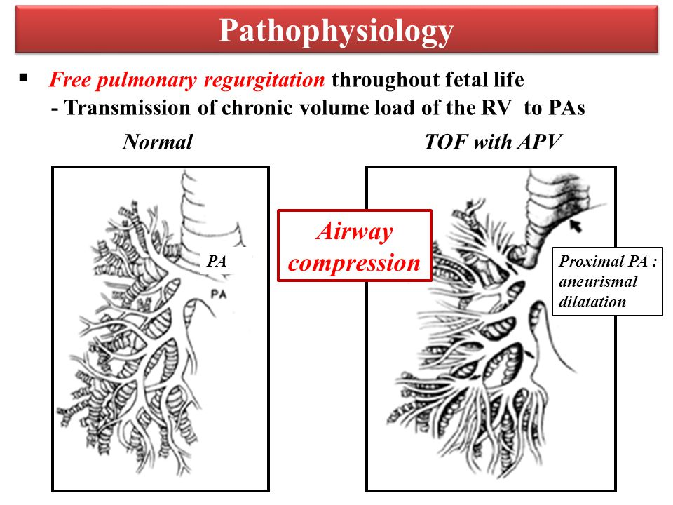 Pathophysiology  Free pulmonary regurgitation throughout fetal life - Transmission of chronic volume load of the RV to PAs Proximal PA : aneurismal dilatation PA NormalTOF with APV Airway compression