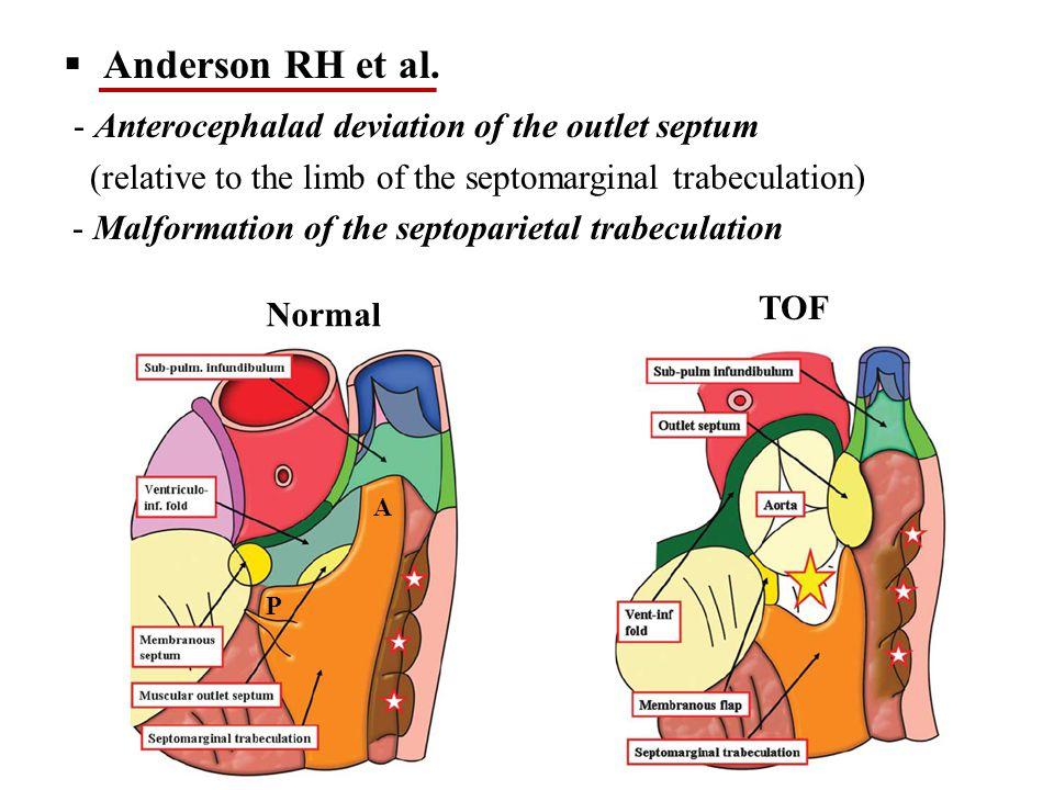  Anderson RH et al.