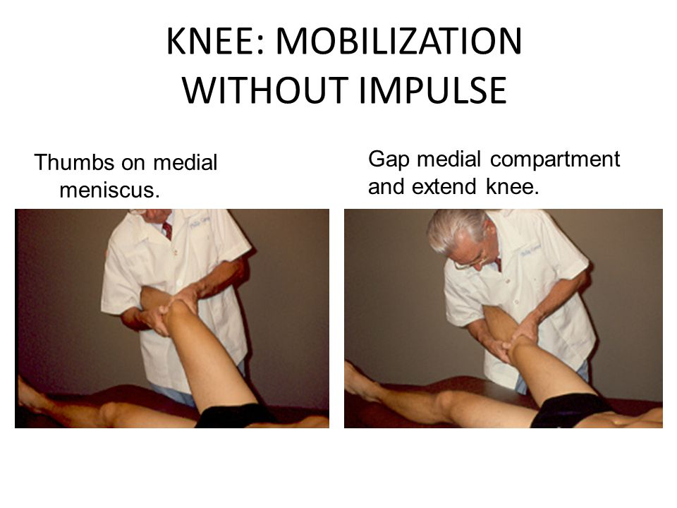 KNEE: MOBILIZATION WITHOUT IMPULSE Thumbs on medial meniscus.