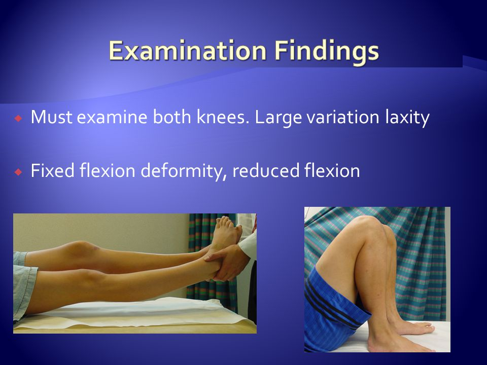  Must examine both knees. Large variation laxity  Fixed flexion deformity, reduced flexion
