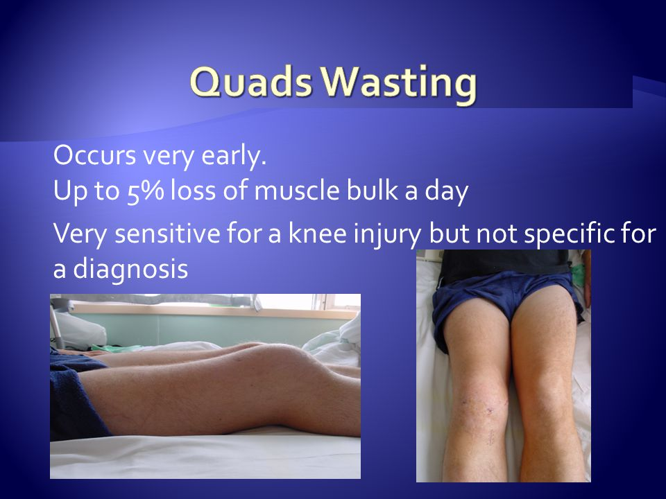 Occurs very early. Up to 5% loss of muscle bulk a day Very sensitive for a knee injury but not specific for a diagnosis