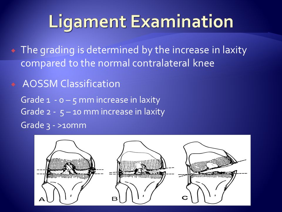  The grading is determined by the increase in laxity compared to the normal contralateral knee  AOSSM Classification Grade 1 - 0 – 5 mm increase in