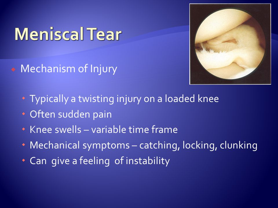  Mechanism of Injury  Typically a twisting injury on a loaded knee  Often sudden pain  Knee swells – variable time frame  Mechanical symptoms – c