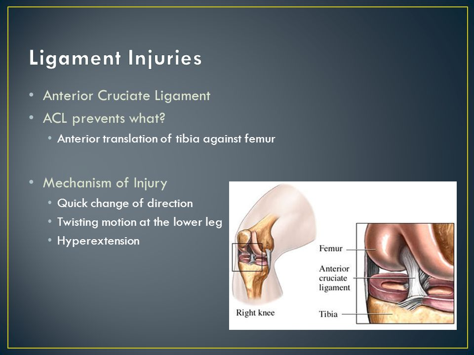 Anterior Cruciate Ligament ACL prevents what.