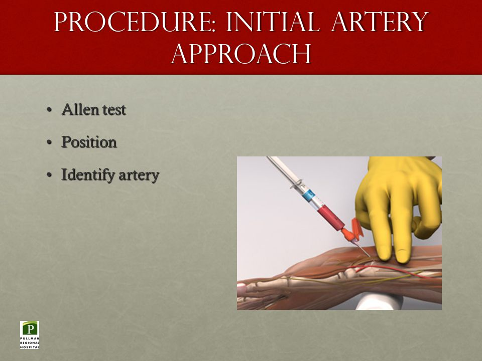 Procedure: Initial Artery Approach Allen testAllen test PositionPosition Identify arteryIdentify artery