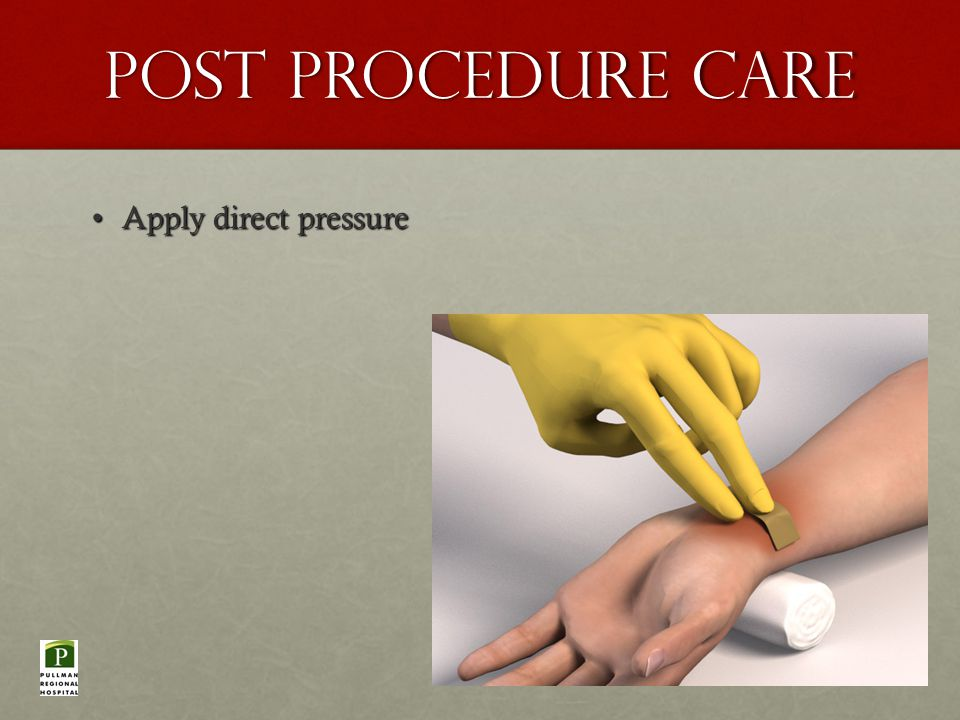 Post Procedure Care Apply direct pressureApply direct pressure