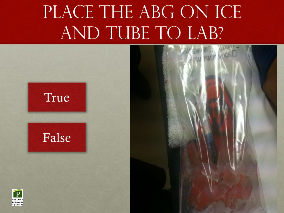 Place the abg on ice and tube to lab True False
