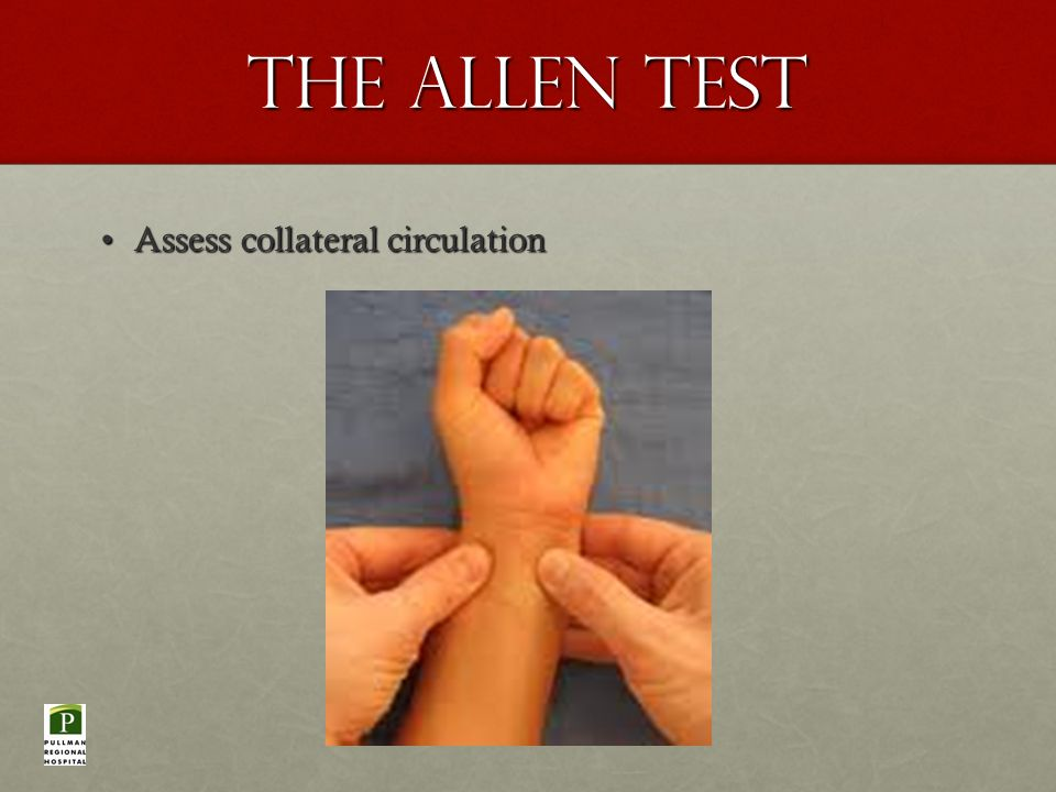The Allen Test Assess collateral circulationAssess collateral circulation