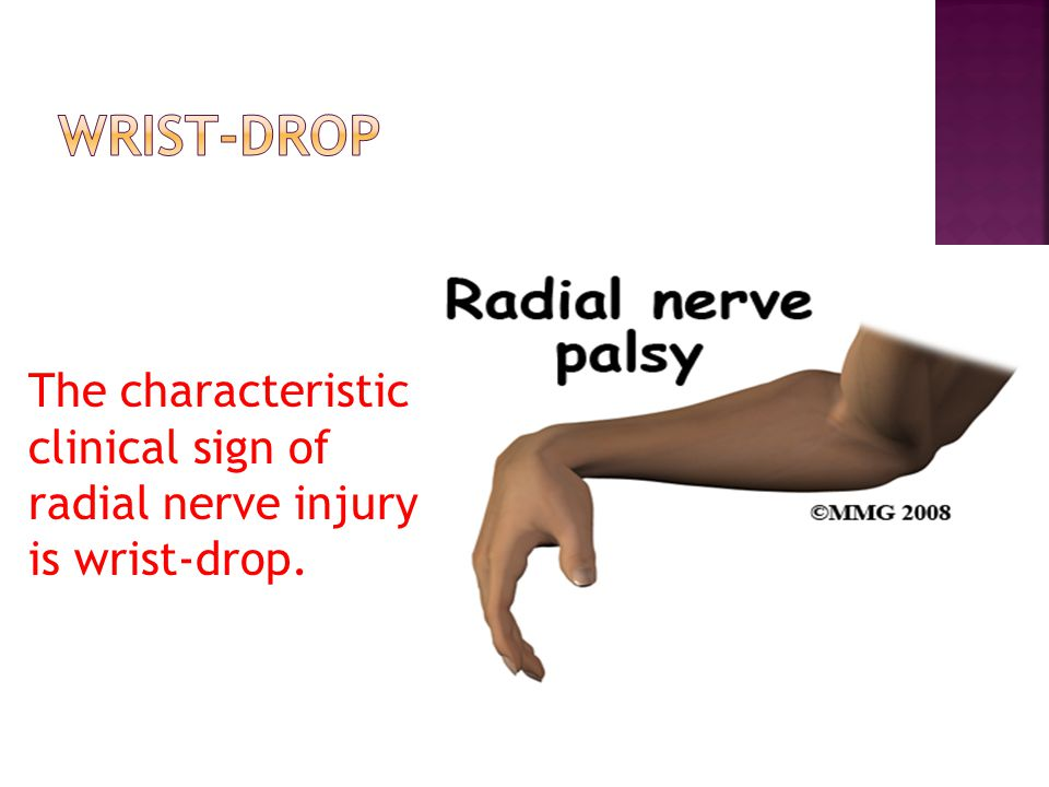 The characteristic clinical sign of radial nerve injury is wrist-drop.