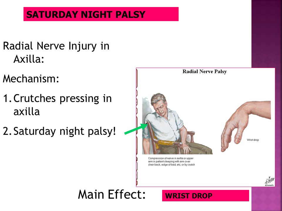 SATURDAY NIGHT PALSY WRIST DROP Radial Nerve Injury in Axilla: Mechanism: 1.Crutches pressing in axilla 2.Saturday night palsy! Main Effect: