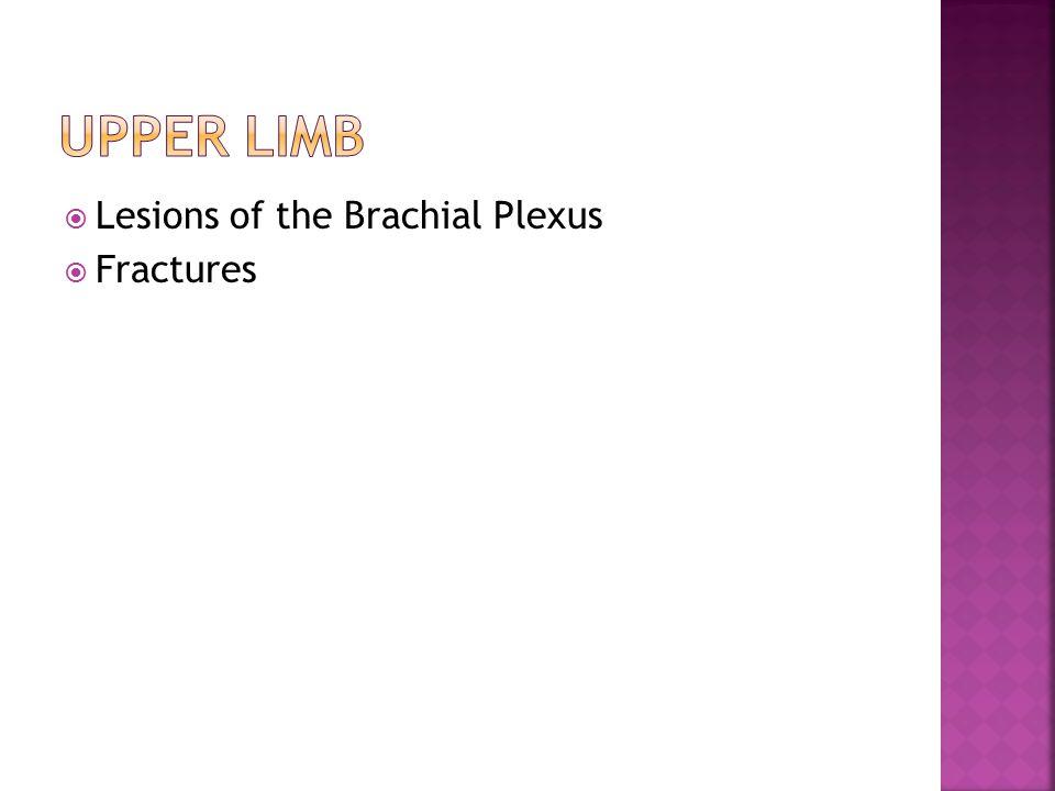  Lesions of the Brachial Plexus  Fractures