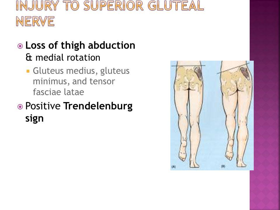  Loss of thigh abduction & medial rotation  Gluteus medius, gluteus minimus, and tensor fasciae latae  Positive Trendelenburg sign