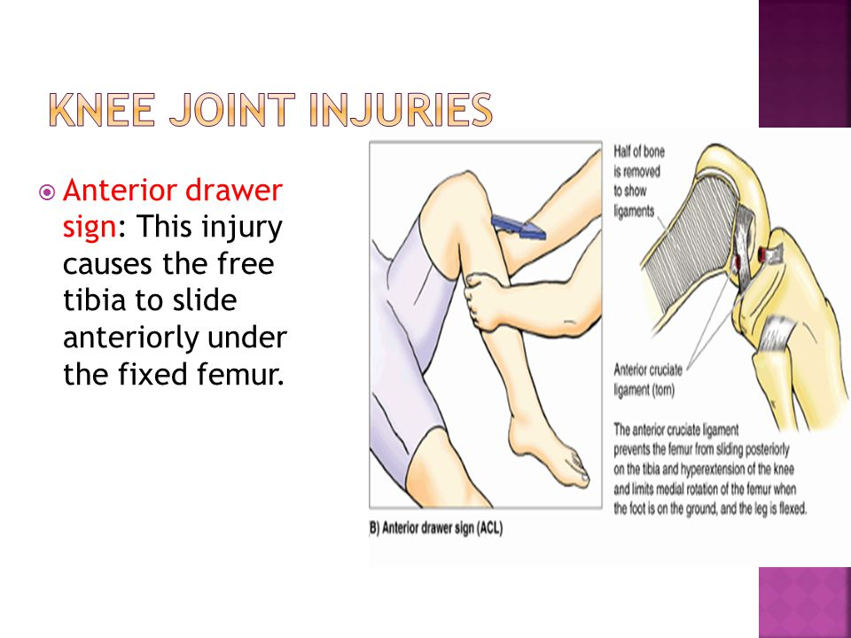  Anterior drawer sign: This injury causes the free tibia to slide anteriorly under the fixed femur.