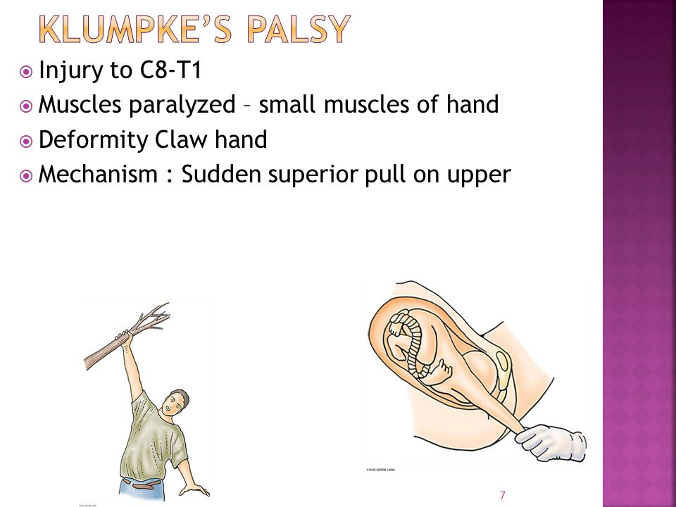 7  Injury to C8-T1  Muscles paralyzed – small muscles of hand  Deformity Claw hand  Mechanism : Sudden superior pull on upper