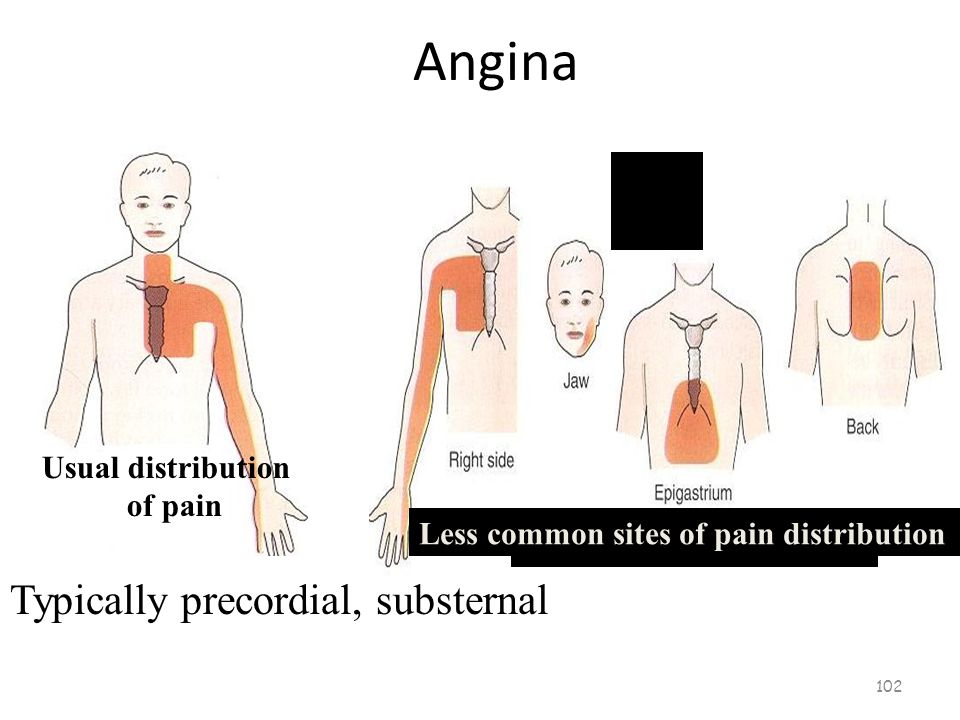 Locations of Angina 101