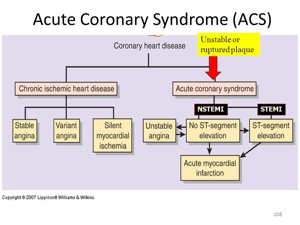 Acute Coronary Syndrome (ACS) 107