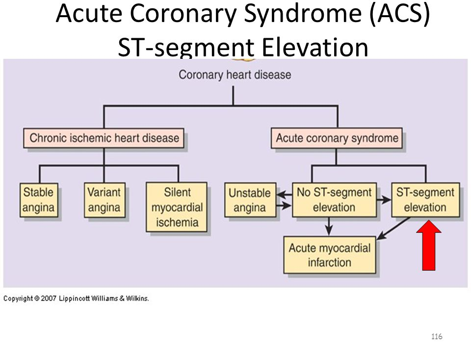 Acute Coronary Syndrome (ACS) ST-segment Elevation 115