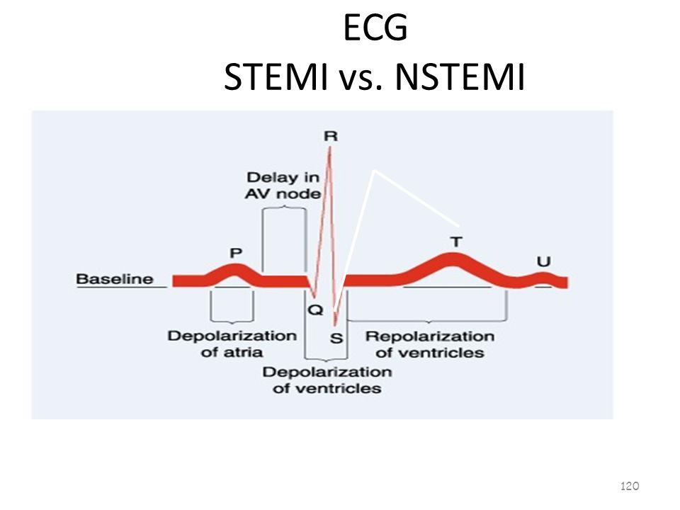 ECG STEMI vs. NSTEMI 119