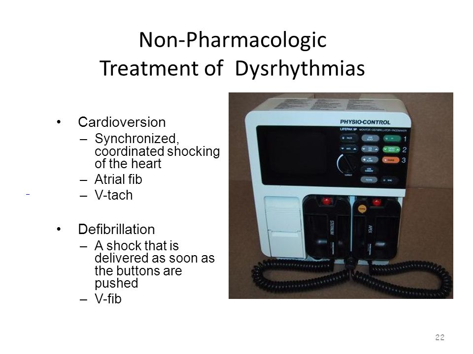 Non-Pharmacologic Treatment of Dysrhythmias 21
