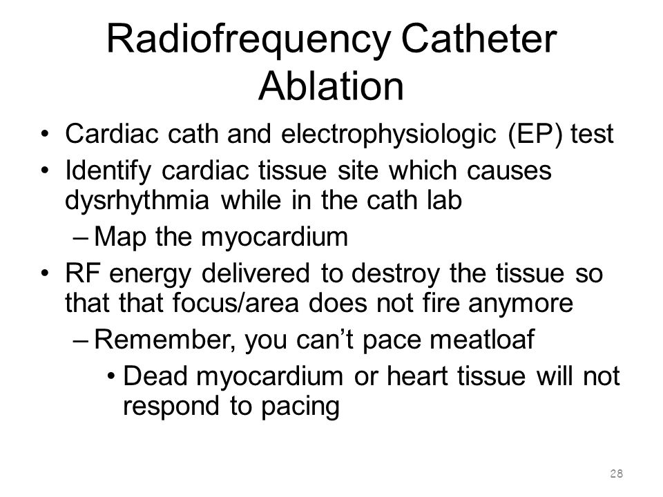 Radiofrequency Catheter Ablation 27