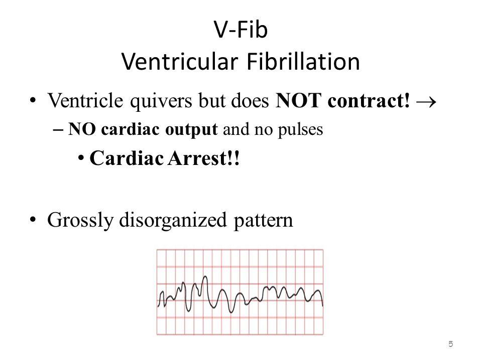 V-Fib Ventricular Fibrillation 4