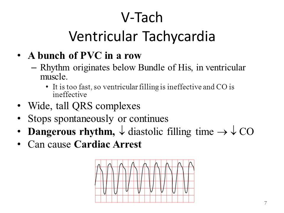 V-Tach Ventricular Tachycardia 6