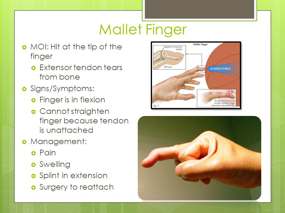 Jersey Finger  Flexor tendon tears away from fingertip  MOI: DIP jt is in flexion and is suddenly forced to extend (i.e.