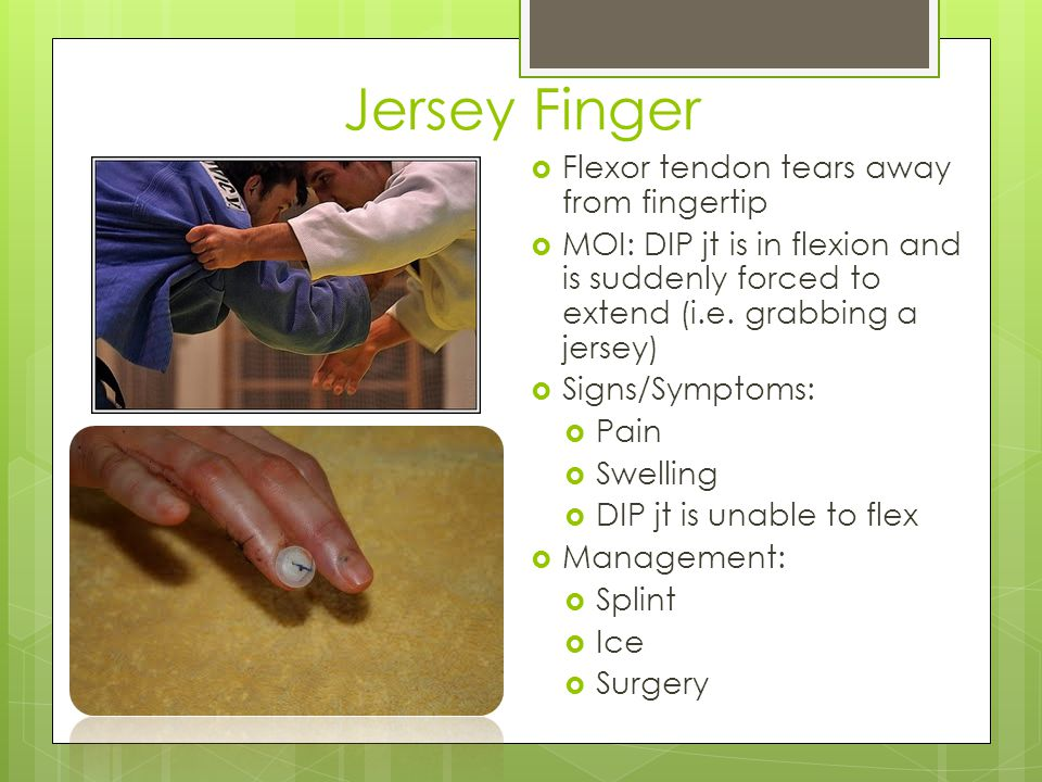 Wrist Sprain  MOI:  FOOSH  Excessive radial/ulnar deviation  Signs/Symptoms  Pain  Decreased ROM  Decreased grip strength  Swelling  Laxity  Management:  RICE  Splint  Rehab to strengthen hand muscles
