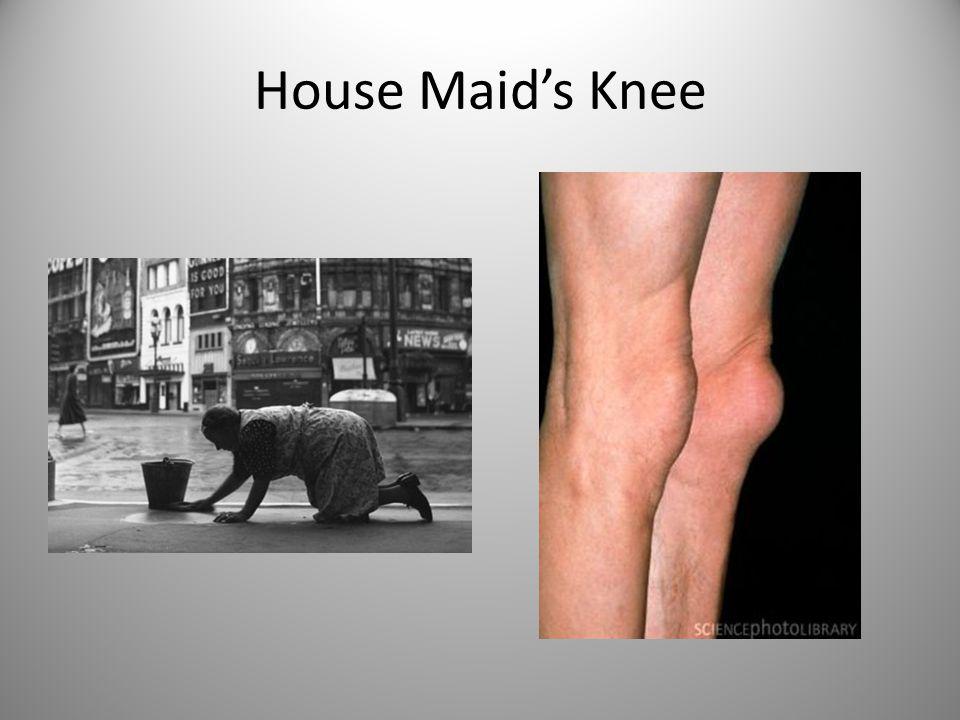 House Maid's Knee