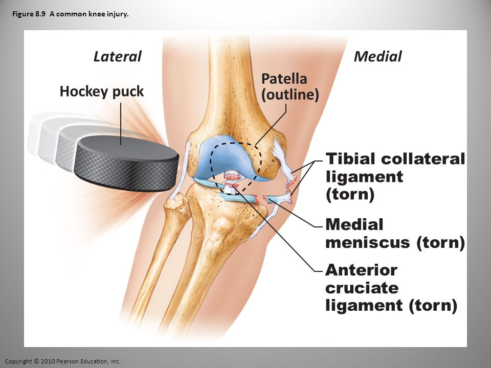 Copyright © 2010 Pearson Education, Inc. Figure 8.9 A common knee injury.