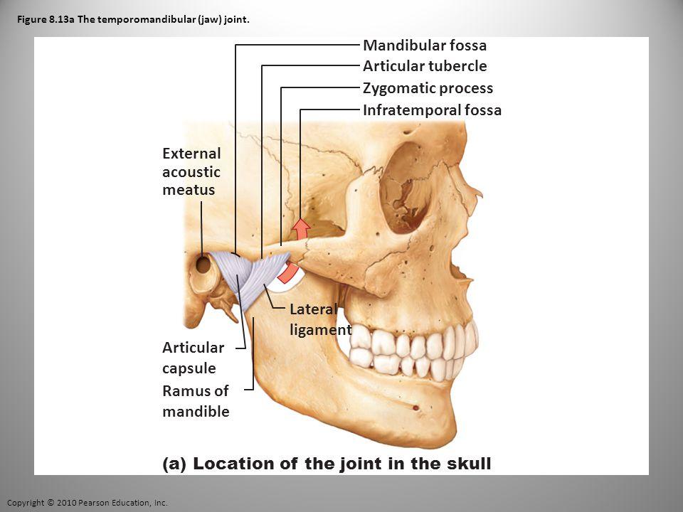 Copyright © 2010 Pearson Education, Inc. Figure 8.13a The temporomandibular (jaw) joint.