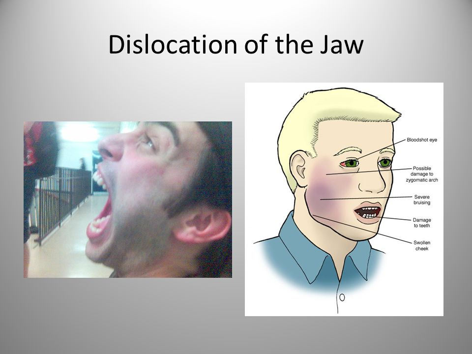 Dislocation of the Jaw