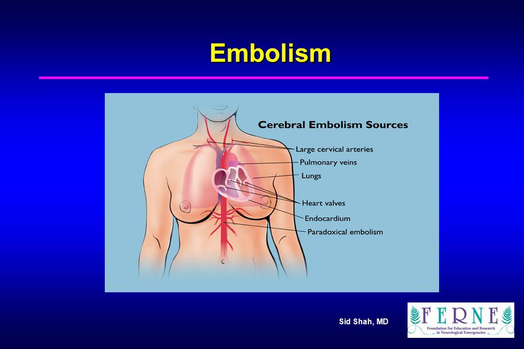 Sid Shah, MD Embolism