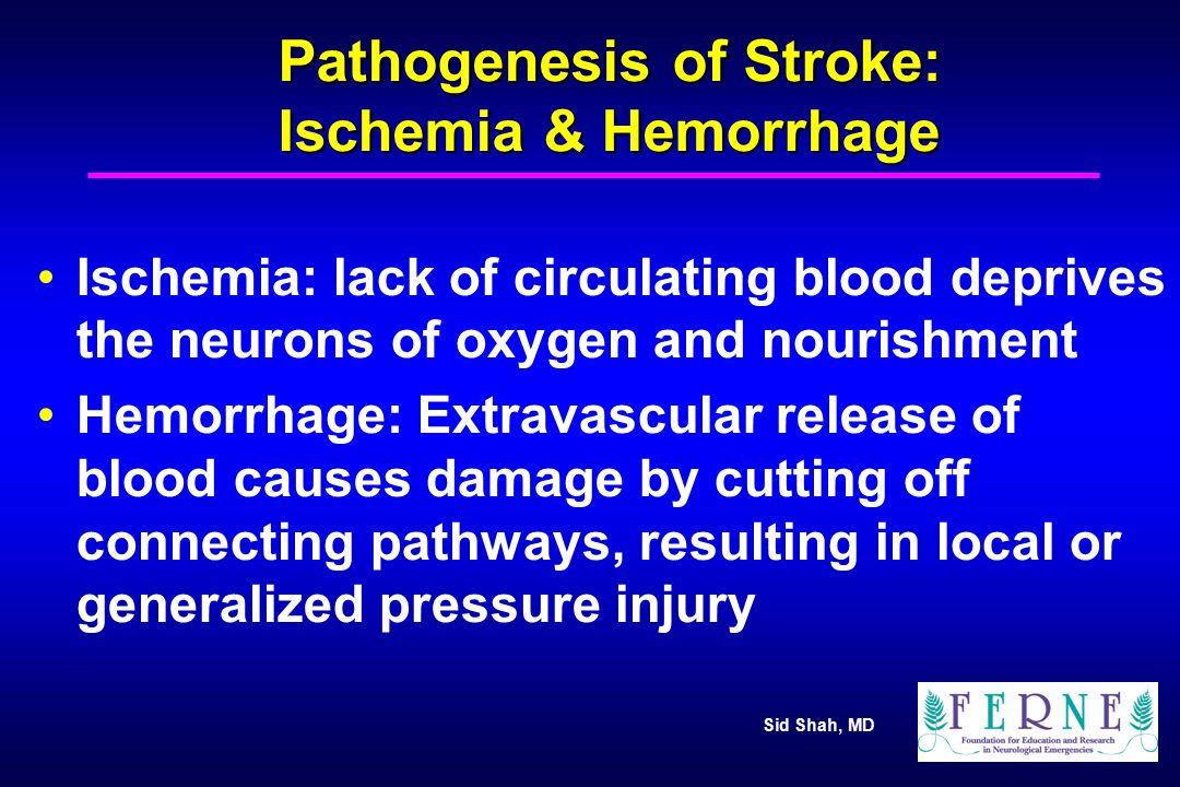 Sid Shah, MD Major Categories of Ischemic Stroke Thrombosis Embolism Global-Ischemic or Hypotensive Stroke