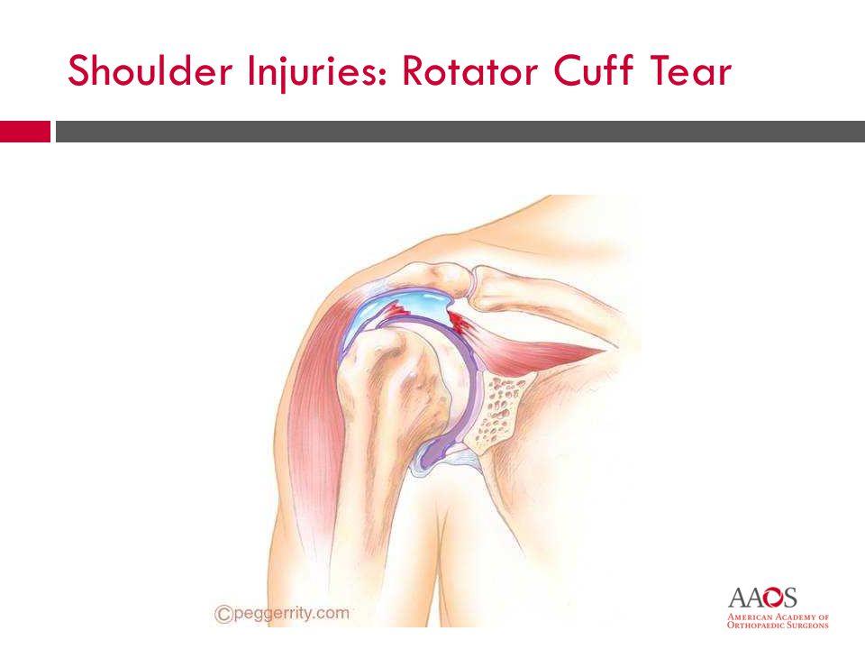 Shoulder Injuries: Rotator Cuff Tear