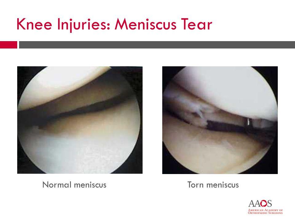 Knee Injuries: Meniscus Tear Normal meniscusTorn meniscus