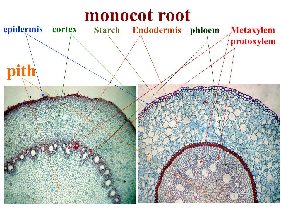 monocot root cortex EndodermisMetaxylem protoxylem phloem pith Starch epidermis
