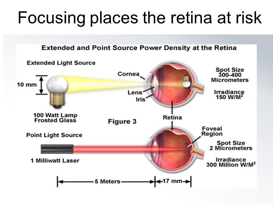 Focusing places the retina at risk