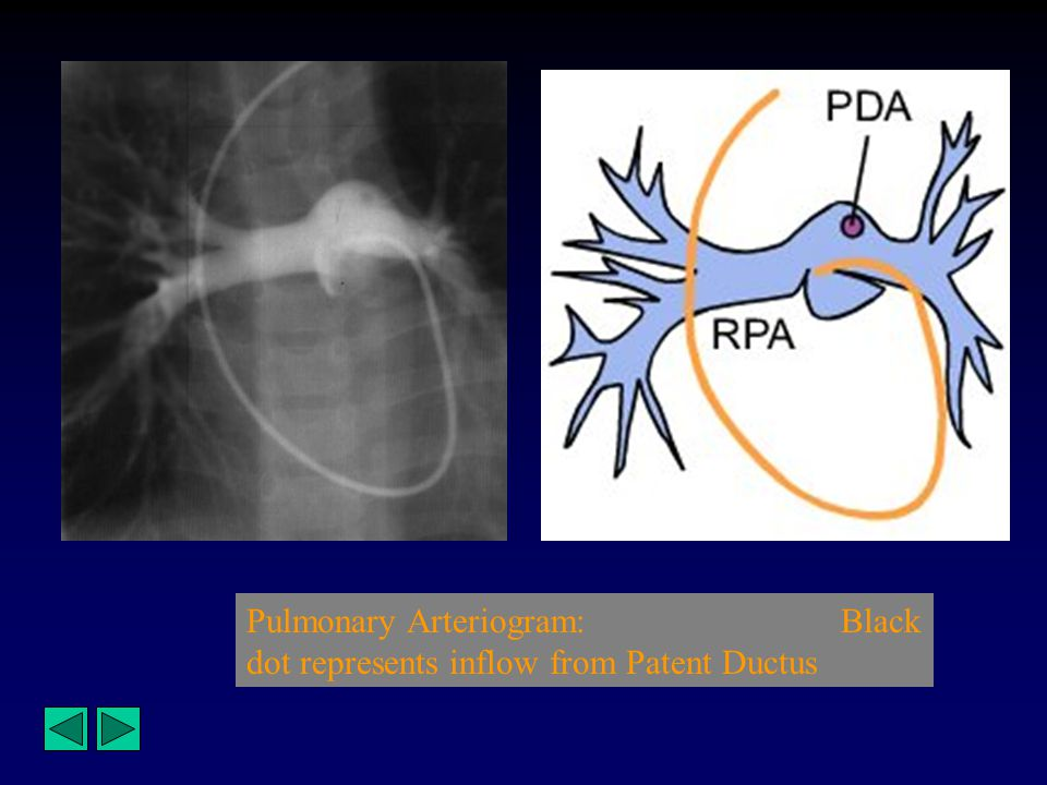 Pulmonary Arteriogram: Black dot represents inflow from Patent Ductus