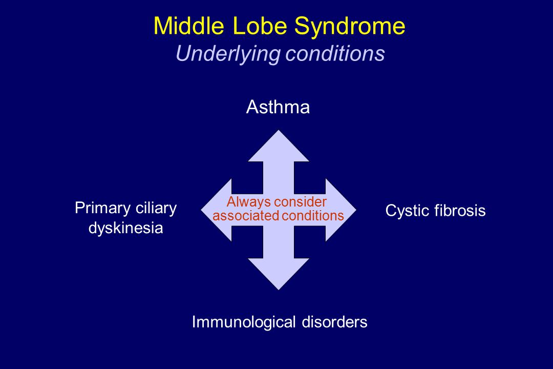 Middle Lobe Syndrome Underlying conditions Always consider associated conditions Asthma Primary ciliary dyskinesia Cystic fibrosis Immunological disorders
