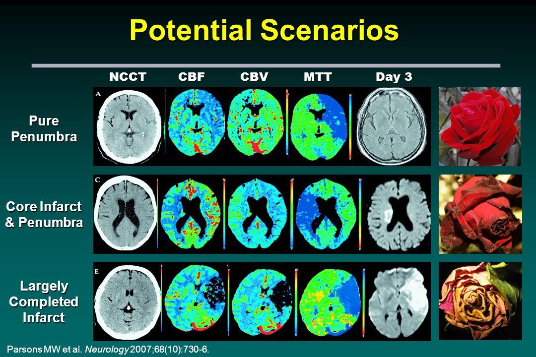 Potential Scenarios Parsons MW et al. Neurology 2007;68(10):730-6.