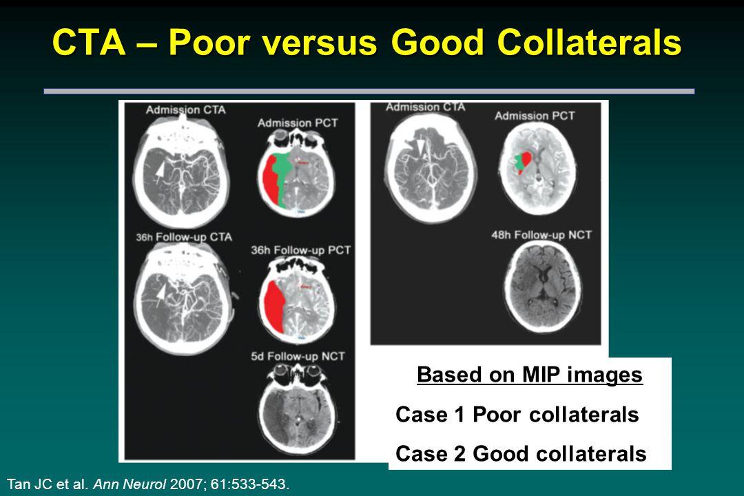CTA – Poor versus Good Collaterals Based on MIP images Case 1 Poor collaterals Case 2 Good collaterals Tan JC et al.
